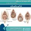 جراحی زیبایی واژن با تزریق چربی