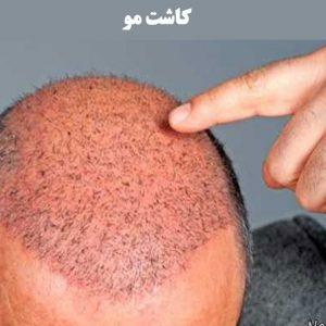 کاشت-مو